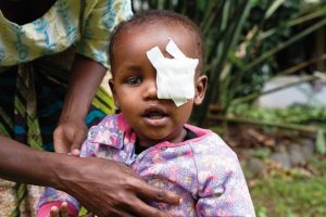 Abdul from Tanzania had glaucoma and was operated. Picture: Manuel Ferrigato